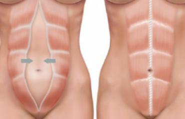 diastasis abdominal